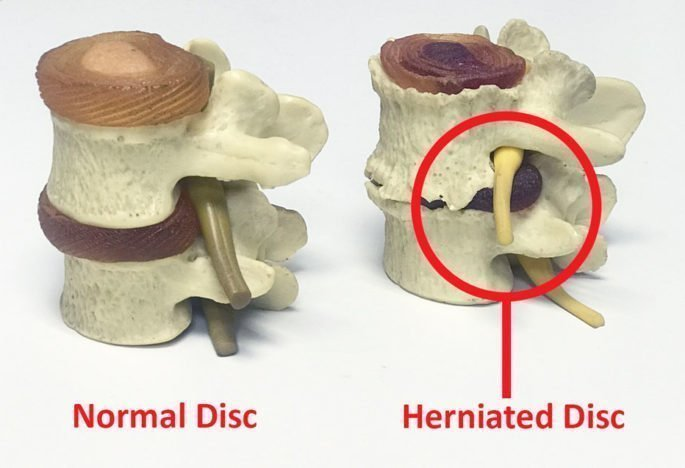 Herniated disc and what you can do about it