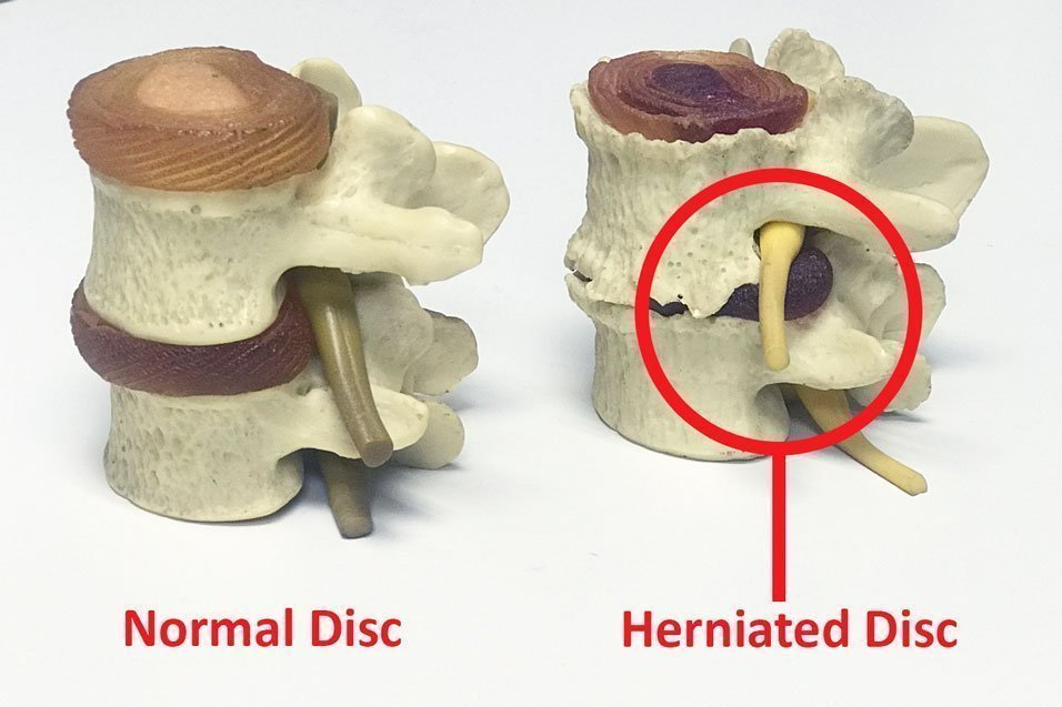Image comparing two spinal joints. One is normal while the other has a herniated disc