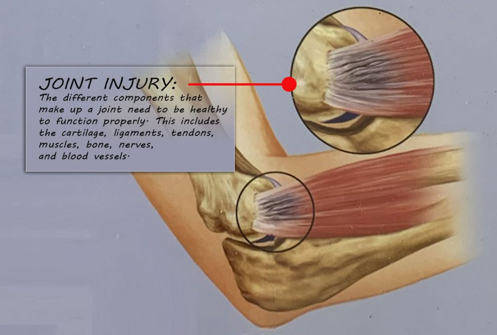 Joint Injury from a car crash